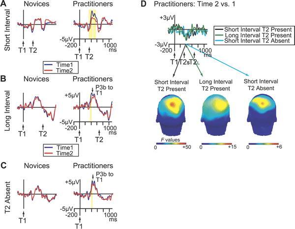 Hersenen training door meditatie