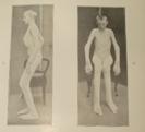 artrose in 1880....